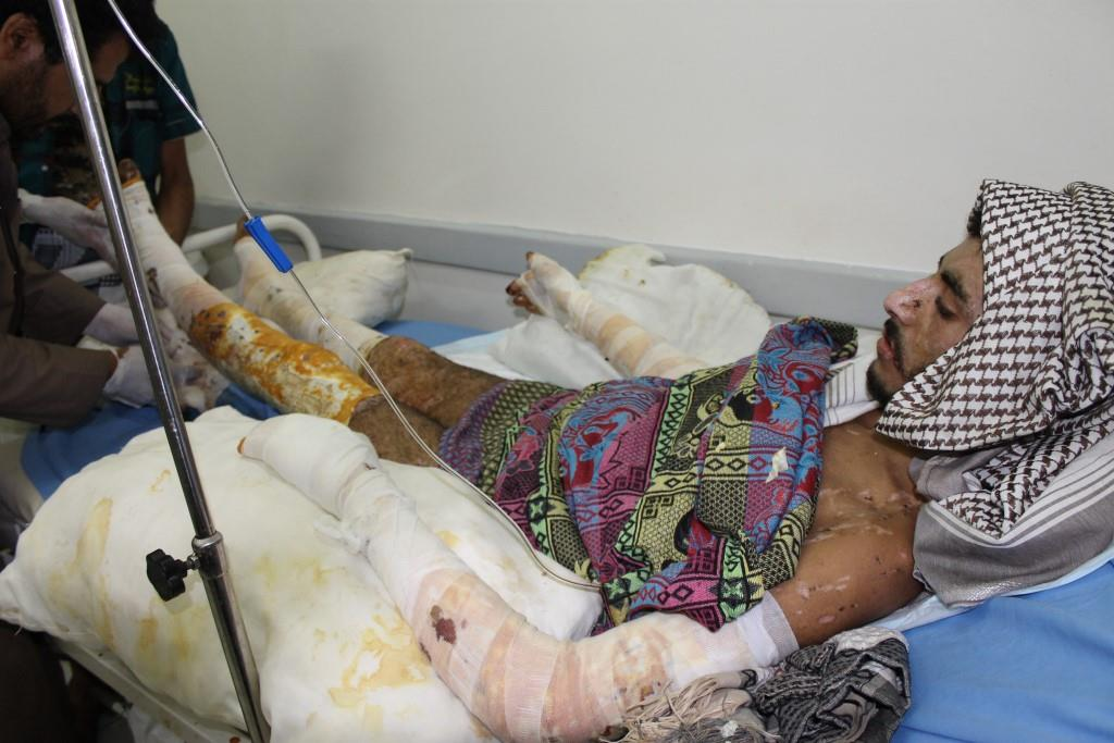Houthi fighter in Sanaa hospital after injury.jpg